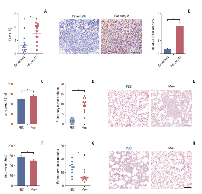 Tumor Associated Macrophages Derived Tgf B Induced Epithelial To Mesenchymal Transition In Colorectal Cancer Cells Through Smad2 3 4 Snail Signaling Pathway
