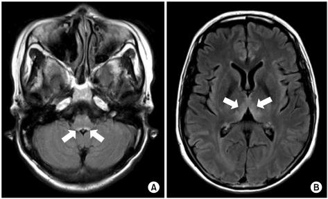 advanced dementia prognostic tool pdf
